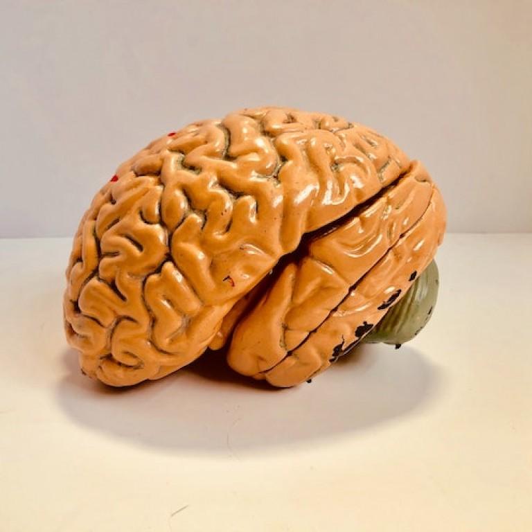 mozek_1